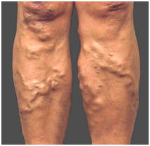 superficial varicose veins