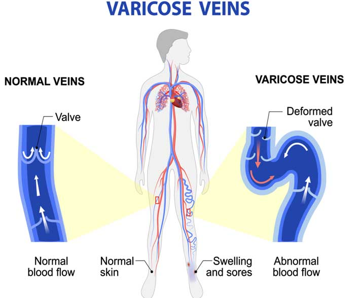 Symptoms Of Varicose Veins Recent Treatments Delhi India Dr